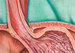 Гастроэзофагеальная рефлюкснная болезнь: клиника и дианостика.