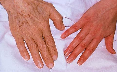 Гемолитическая анемия: диагностика