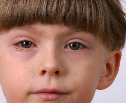 Гноятся глаза у ребенка. Коньюктивит у детей.