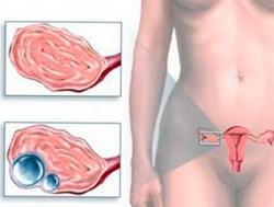 Гранулезоклеточная взрослая опухоль яичника
