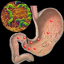Хеликобактериоз