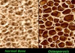 Костная масса и остеопороз