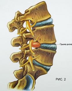 Лечение позвоночной грыжи без операции