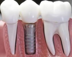 Моментальная имплантация зубов