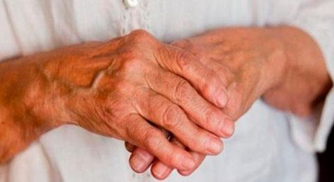 Народное средство лечения полиартрита суставов дегенеративное повреждение медиального мениска коленного сустава