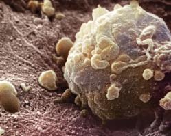 Рак и метастазы