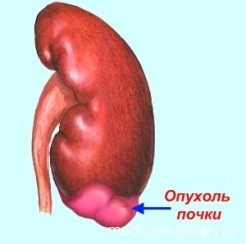 Рак почки: классификация и клиника