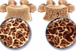 Статины для лечения и профилактики атеросклероза