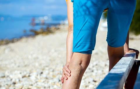Варикозное расширение вен, симптомы и лечение